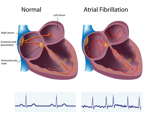 Research Study on Atrial Fibrillation 2019 – Catheter Ablation and Surgical and Cardiovascular Applications