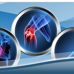 Orthopedic Braces and Supports Market to Grow at 5.7% CAGR and Projected to Reach US$ 5.5 Billion Revenue by 2024 Driven by Knee, Ankle, Spine, Shoulder and Elbow
