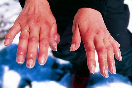 Leprosy Treatment Market: Global Industry Review, Statistics, Demand and Forecasts to 2025